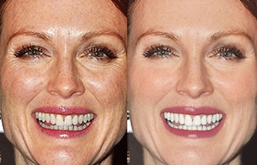 Julianne-Moore-Before-After-Photoshop